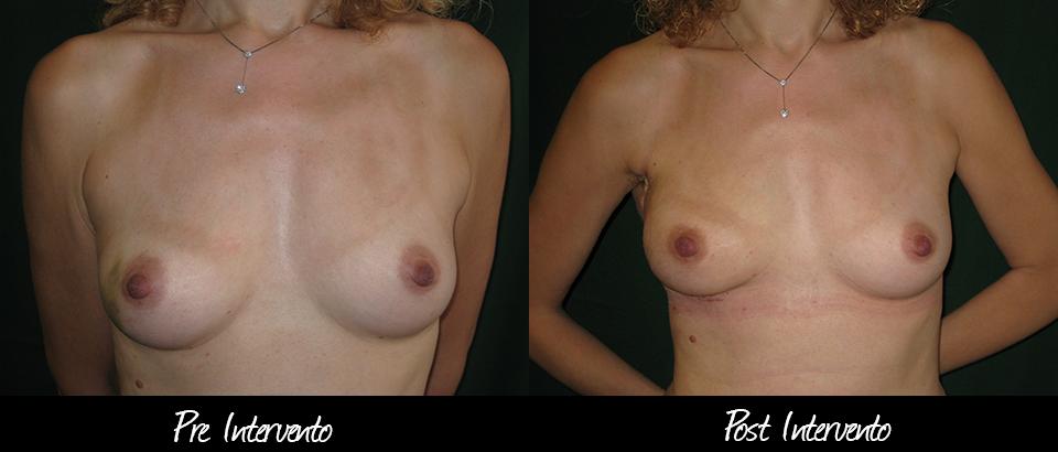 ricostruzione-mastectomia
