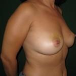ricostruzione-seno-destro